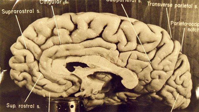 Mózg Alberta Einsteina